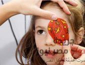 ما هو حَول العين لدي الأطفال | صوت مصر نيوز