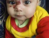 بعدما تداولتها مواقع التواصل الاجتماعي.. وزيرة التضامن تتلقي تقرير عن حالة الطفلة ساجدة التي تعرضت للعنف والتعذيب | صوت مصر نيوز